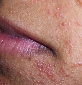 dermatita atopica la caini hernia mesh