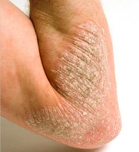 dermatita de staza venoasa tratament helicobacter