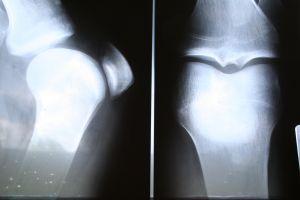 Afla totul despre artroza: Simptome, tipuri, diagnostic si tratament | thelightdesign.ro